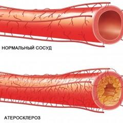 Атеросклероз сосудов - ateroskleroz