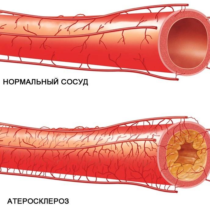 Профилактика атеросклероза