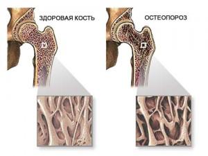 Здоровая костная ткань и с остеопорозом