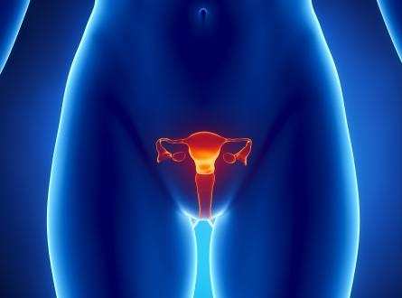 Поликистоз яичников — Лечение народными средствами