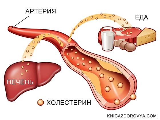 снизить холестерин крови форум