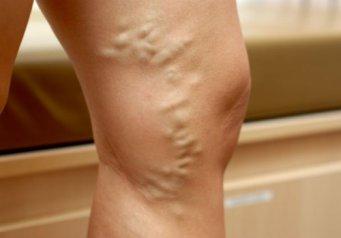 Варикоз. Венозные узлы на ногах
