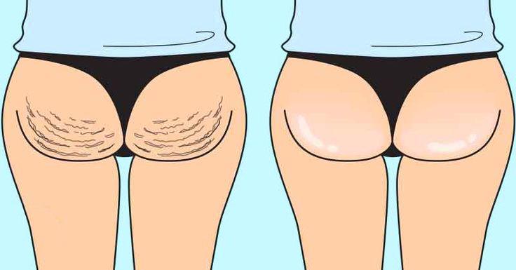 эффективные методы лечения целлюлита